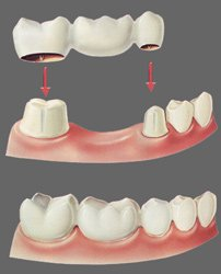 Зубные мосты