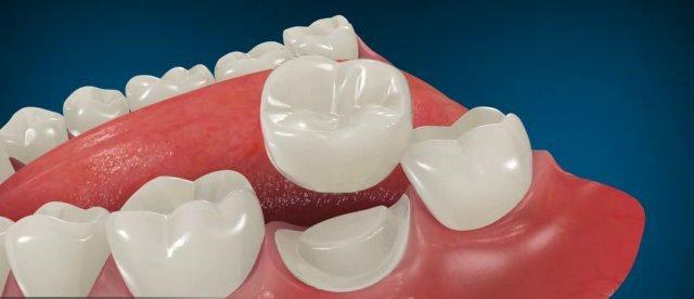 Металлокерамика для протезирования зубов