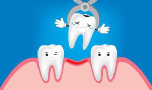Tooth extraction concept