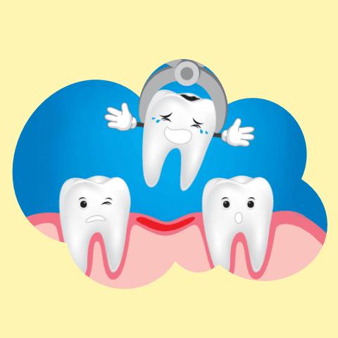Удаление сверхкомплектного зуба у детей