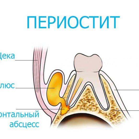Периостит, или зубной флюс: причины, симптомы и методы лечения