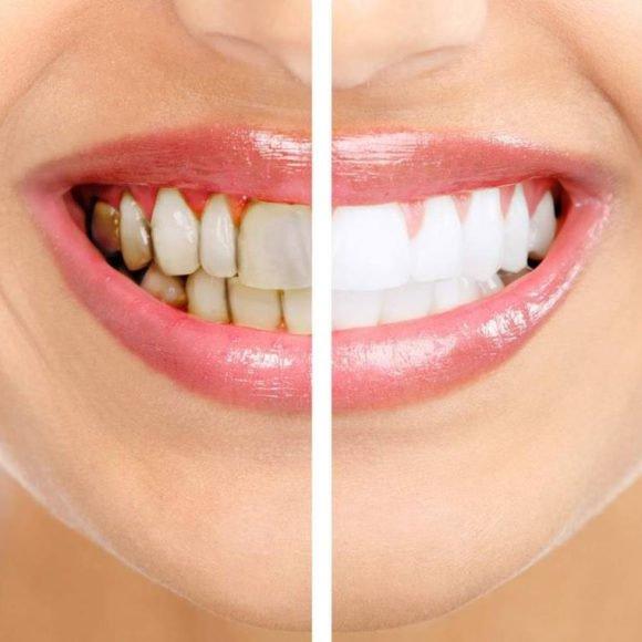 Где удалить зубной камень?