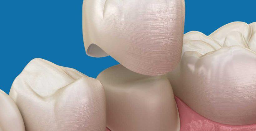 Все, что нужно знать о зубных коронках