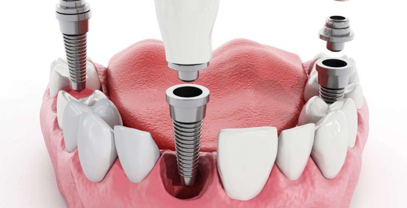 Установка зубных имплатов