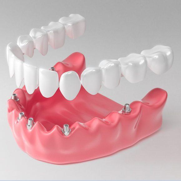 Протезирование зубов: разновидности протезов, когда стоит проводить процедуру?