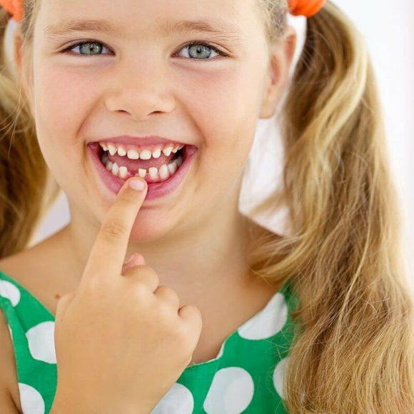 Береги зубы смолоду: все об уходе и лечении молочных зубов
