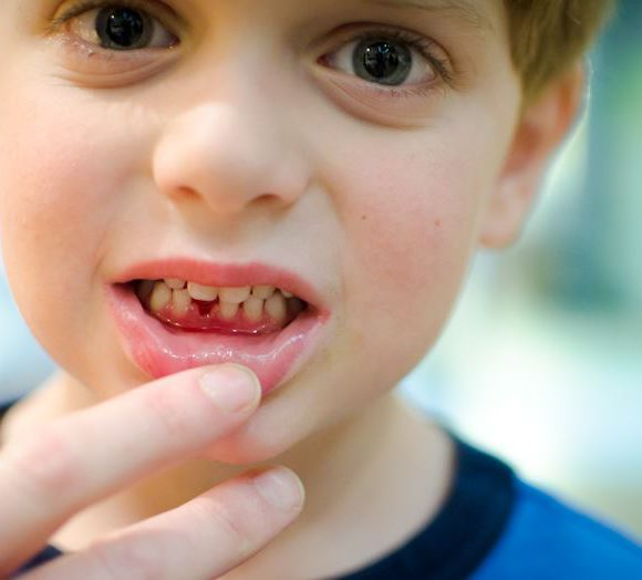 Воспаление десен у детей: разбираемся в причинах, симптомах и подбираем алгоритм лечения